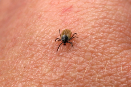Lyme disease Lyme Disease: Misdiagnosed, Underreported, and Epidemic