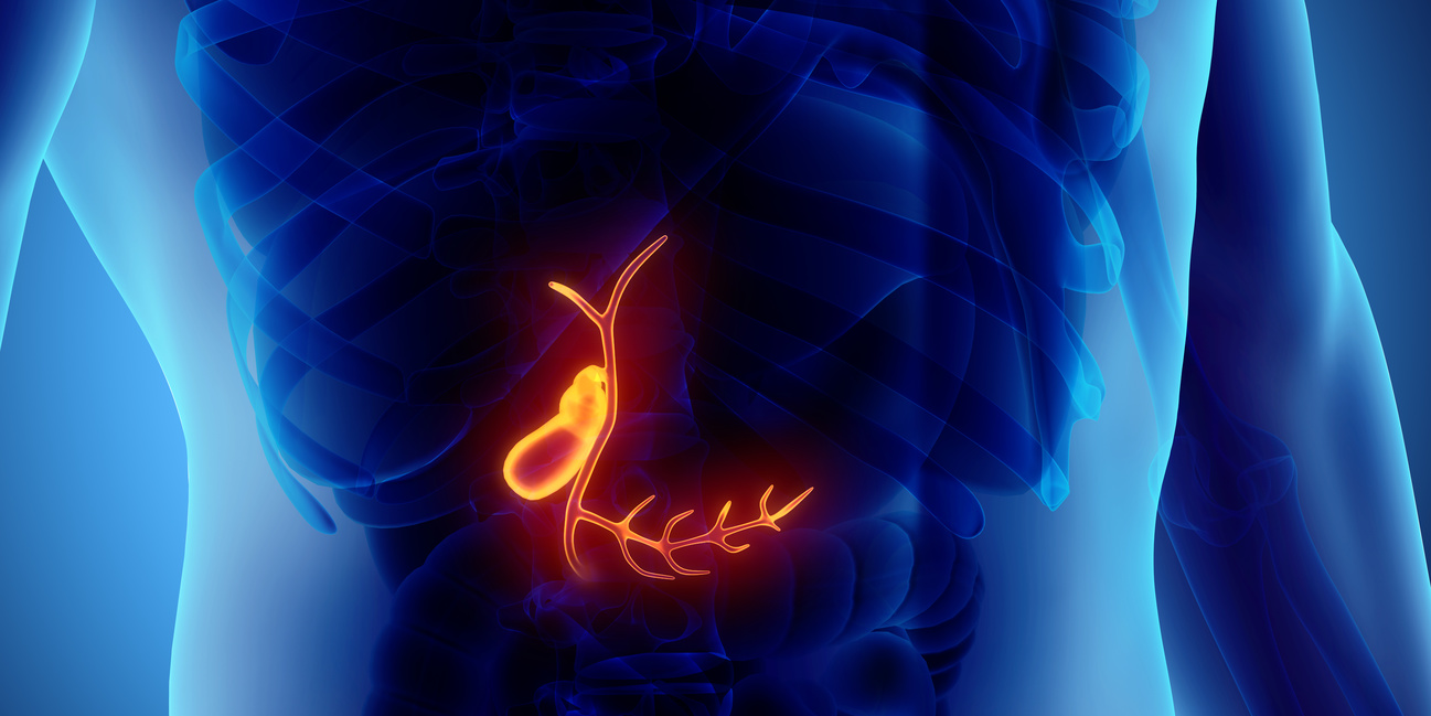How to Totally Stop Gallbladder Attacks and Keep Your Gallbladder ...